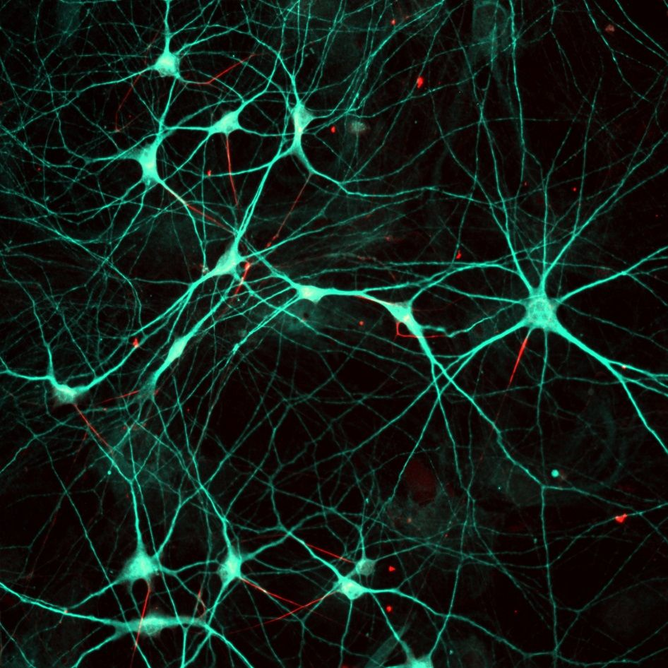 Axon initial segment (red) in human stem cell-derived neurons (green)